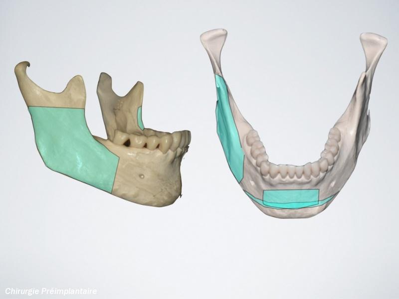 votre cabinet dentaire marrakech cabinet dentaire marrakech clinique dentaire marrakech. Black Bedroom Furniture Sets. Home Design Ideas
